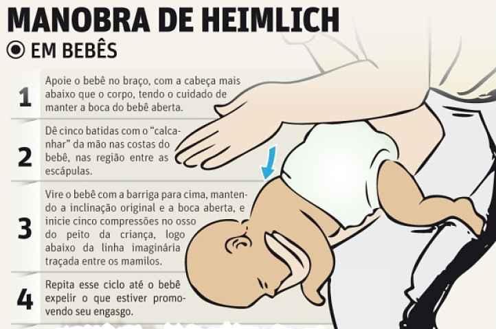 Passo a passo manobra em bebês